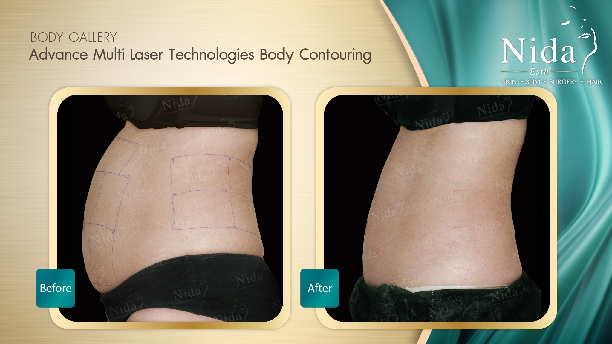 slimmarea cavitației cu ultrasunete